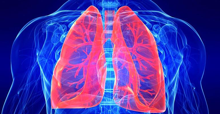 Tratamento para Hipertensão Pulmonar