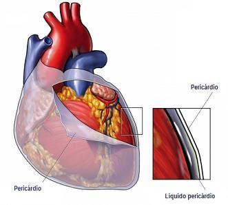Tratamento para Pericardite Aguda