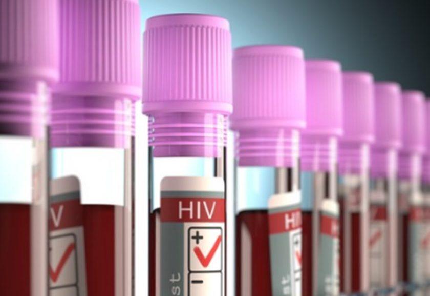 Segundo caso de cura da AIDS na história da medicina