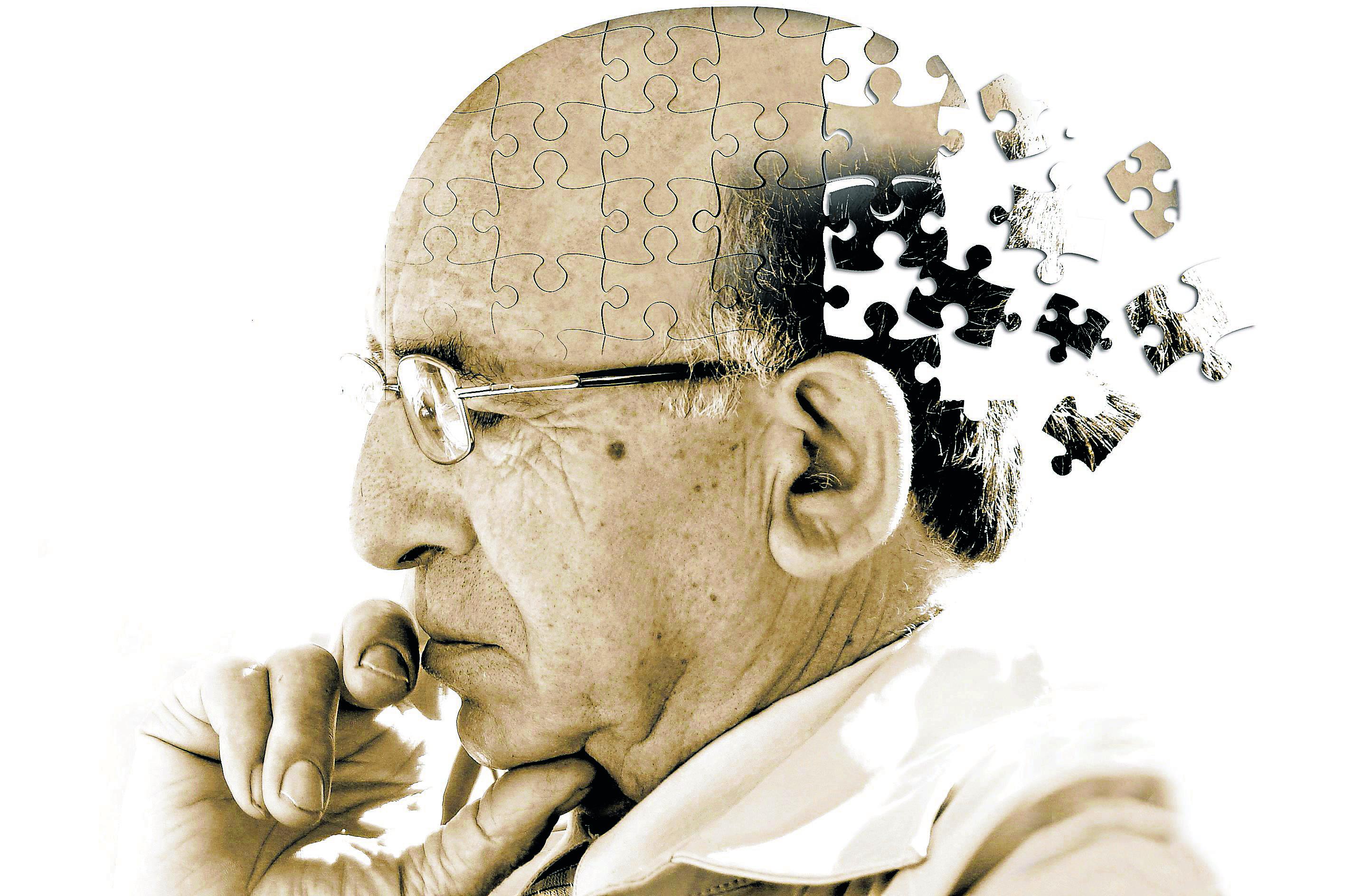 Pfizer ocultou indícios de que um de seus fármacos poderia prevenir o Alzheimer