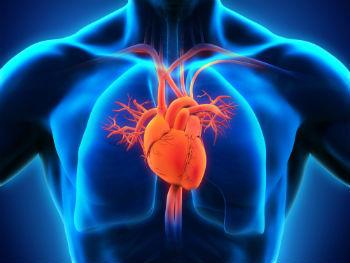 Pericardite Inflamatória Aguda